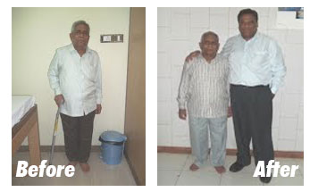 Case-10-Before-After