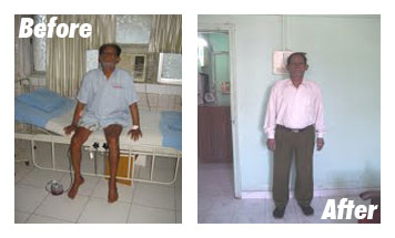 Case-3-Before-After