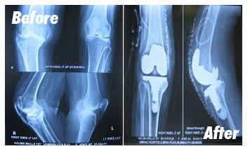 Case-4-Before-After-Xray