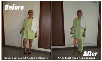 Case-4-Before-After