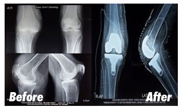 Case-6-Before-After-Xray