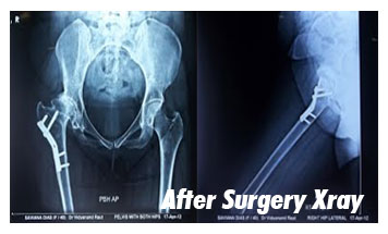 Case-7-After-Xray