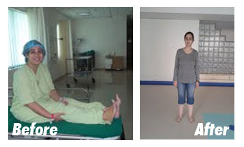 Case-7-Before-After