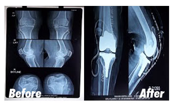 Case-8-Before-After-Xray