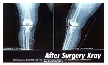 Case-9-After-Xray