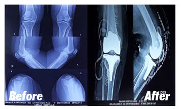 Case-9-Before-After-Xray