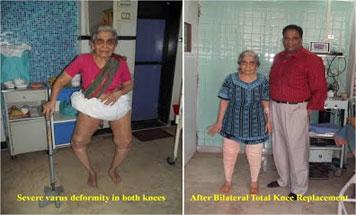 Bilateral TKR for severe OA knee